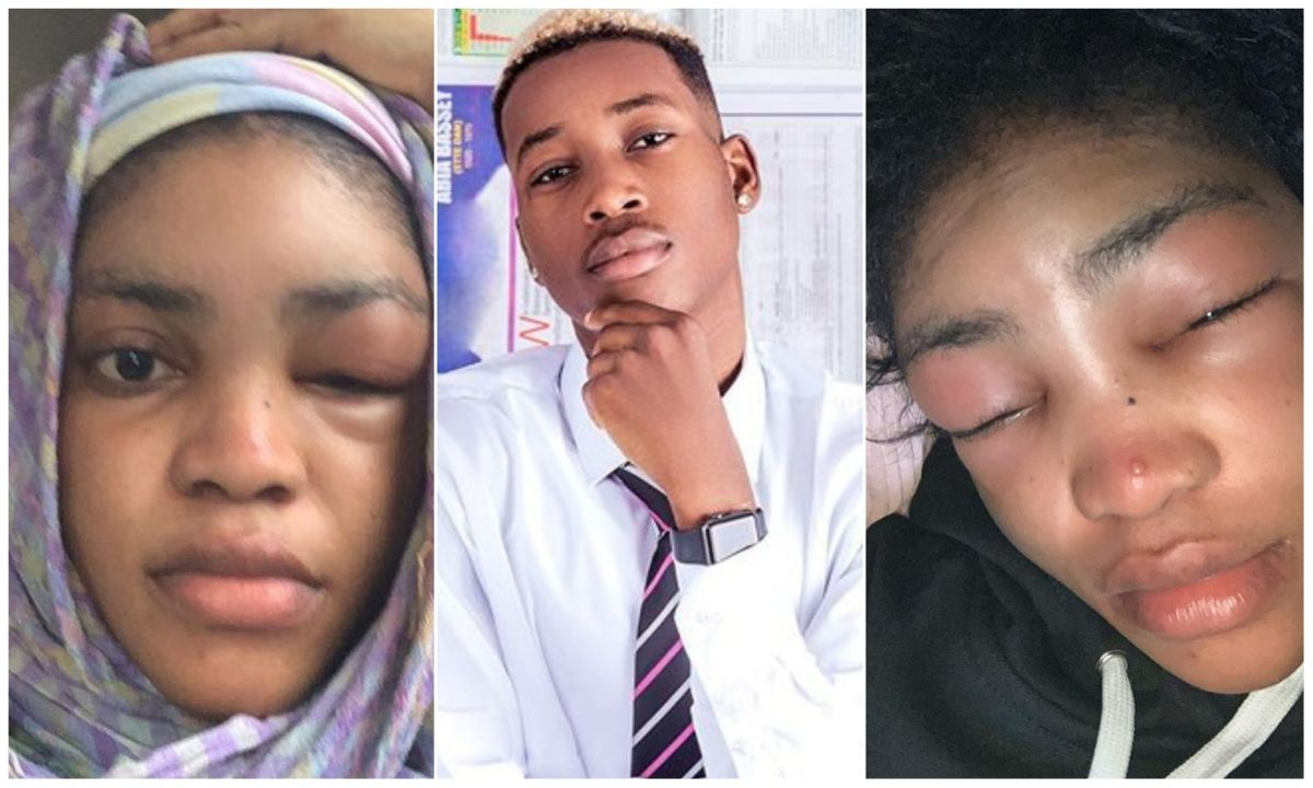 Lil Frosh Breaks Silence after assaulting his girlfriend